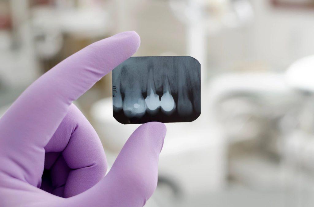 Dental Insurance in Texas